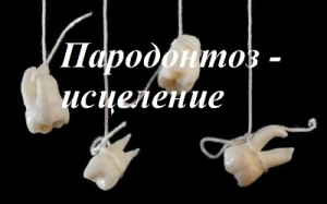 Пародонтоз – уникальный метод исцеления